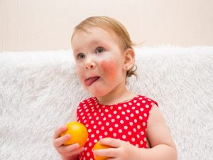 Аллергия на мандарины