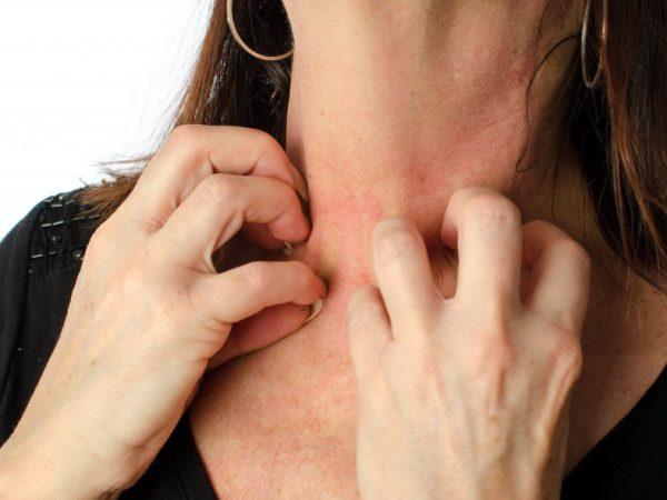 Причины возникновения аллергии на тыкву