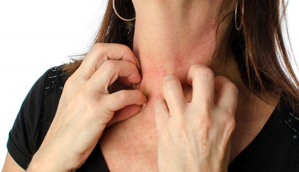 Может ли у ребенка аллергия на тыкву — Аллергия и все о ней